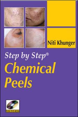 Step by Step Chemical Peels