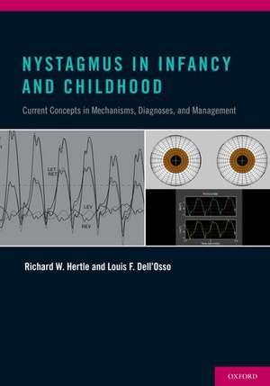 Nystagmus In Infancy and Childhood: Current Concepts in Mechanisms, Diagnoses, and Management de Richard W Hertle