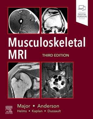 Musculoskeletal MRI de Nancy M. Major