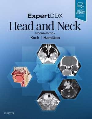 ExpertDDX: Head and Neck de Bernadette L. Koch