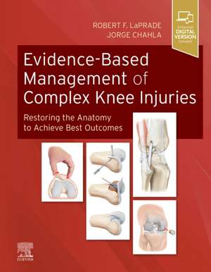 Evidence-Based Management of Complex Knee Injuries imagine