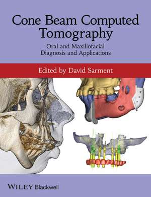 Cone Beam Computed Tomography: Oral and Maxillofacial Diagnosis and Applications de David Sarment