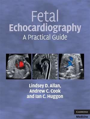 Fetal Echocardiography: A Practical Guide de Lindsey D. Allan