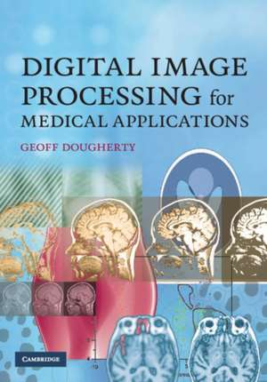 Digital Image Processing for Medical Applications imagine