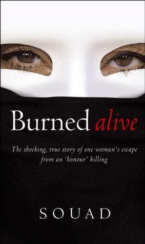 Burned Alive imagine