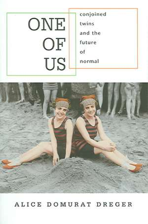 One of Us – Conjoined Twins and the Future of Normal de Alice Domurat Dreger