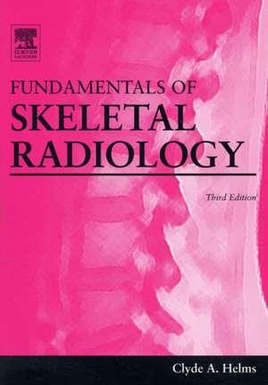 Fundamentals of Skeletal Radiology imagine