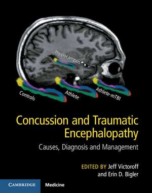 Concussion and Traumatic Encephalopathy: Causes, Diagnosis and Management de Jeff Victoroff