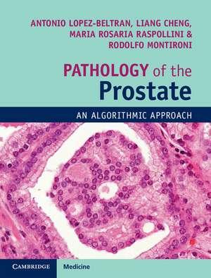 Pathology of the Prostate
