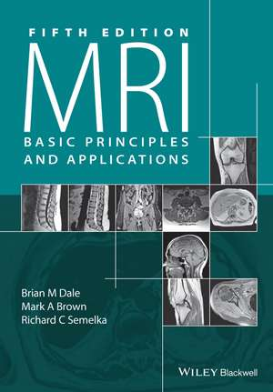 Mri: Basic Principles and Applications de Brian M. Dale