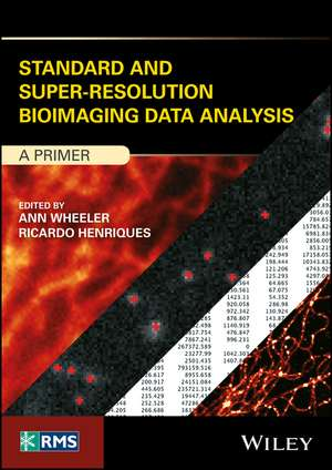 Standard and Super–Resolution Bioimaging Data Analysis