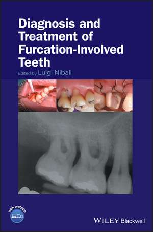 Diagnosis and Treatment of Furcation–Involved Teeth