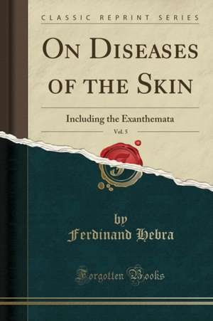 On Diseases of the Skin, Vol. 5: Including the Exanthemata (Classic Reprint)