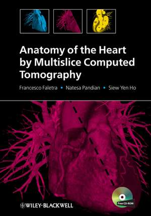 Anatomy of the Heart by Multislice Computed Tomography de Francesco Faletra