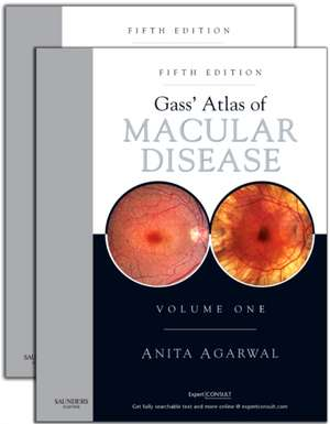 Gass' Atlas of Macular Diseases