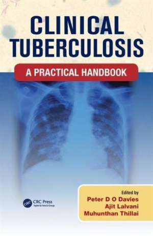 Clinical Tuberculosis