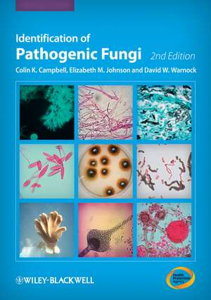 Identification of Pathogenic Fungi
