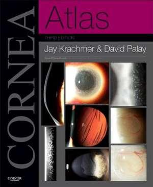 Cornea Atlas