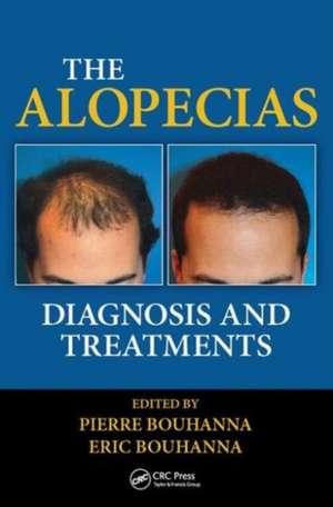 The Alopecias