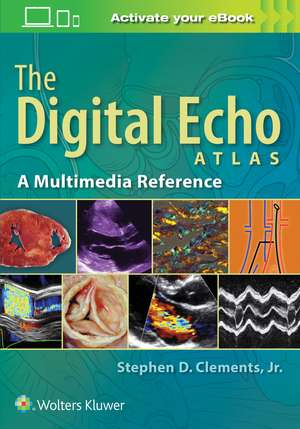 The Digital Echo Atlas