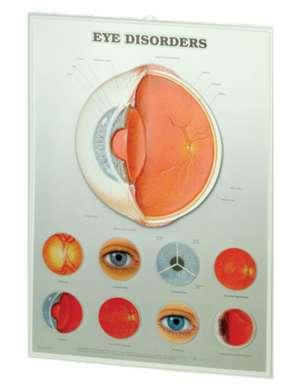 Eye Disorders: 3D Lenticular Chart de Anatomical Chart Company