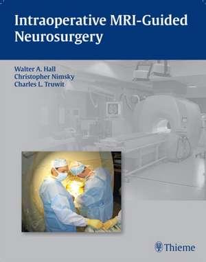 Intraoperative MRI-Guided Neurosurgery imagine