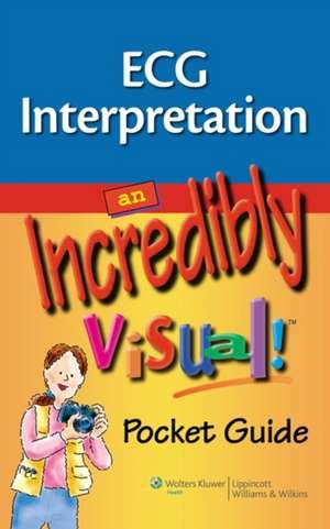 ECG Interpretation: An Incredibly Visual! Pocket Guide