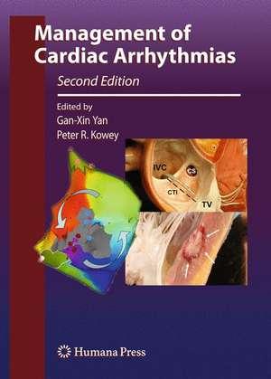 Management of Cardiac Arrhythmias de Gan-Xin Yan