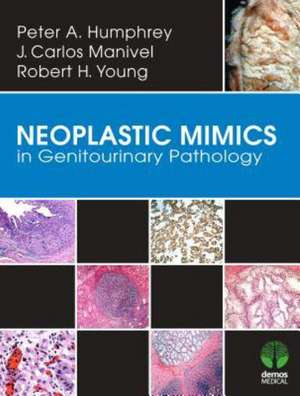 Neoplastic Mimics in Genitourinary Pathology
