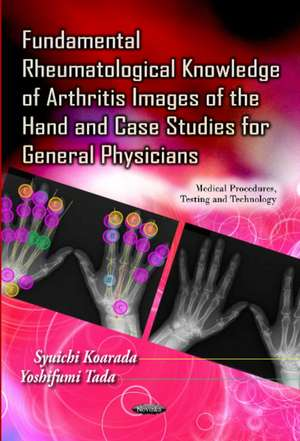 Fundamental Rheumatological Knowledge of Arthritis Images of the Hand & Case Studies for General Physicians