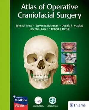 Atlas of Operative Craniofacial Surgery de Steven R. Buchman
