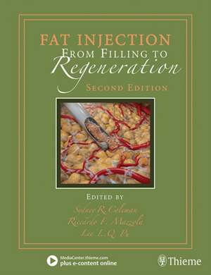 Fat Injection