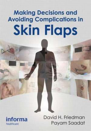 Making Decisions and Avoiding Complications in Skin Flaps