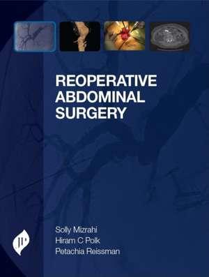 Reoperative Abdominal Surgery