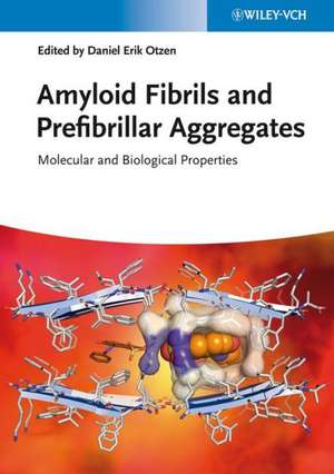 Amyloid Fibrils and Prefibrillar Aggregates