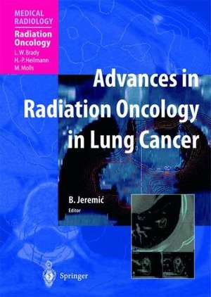 Advances in Radiation Oncology in Lung Cancer de Branislav Jeremic