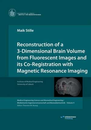 Reconstruction of a 3-Dimensional Brain Volume from Fluorescent Images and its Co-Registration with Magnetic Resonance Imaging