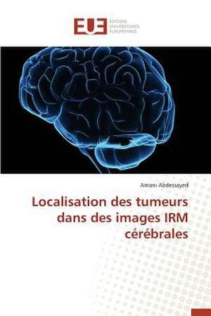 Localisation Des Tumeurs Dans Des Images Irm Cerebrales