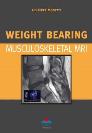 Weight Bearing Musculoskeletal MRI