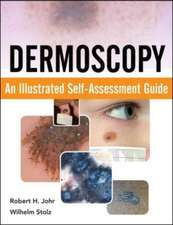 Dermoscopy: An Illustrated Self-Assessment Guide
