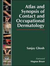 Atlas and Synopsis of Contact and Occupational Dermatology