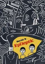 B, D: Epileptic