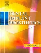 Dental Implant Prosthetics: Hardback