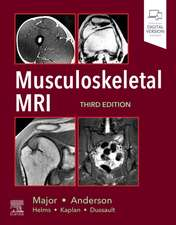 Musculoskeletal MRI