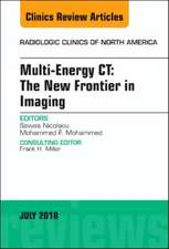 Multi-Energy CT: The New Frontier in Imaging, An Issue of Radiologic Clinics of North America