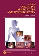 Atlas of Operative Laparoscopy and Hysteroscopy