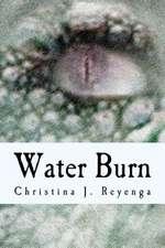 Water Burn