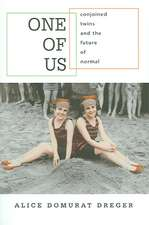 One of Us – Conjoined Twins and the Future of Normal