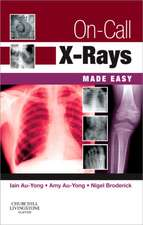 On-Call X-Rays Made Easy