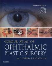 Colour Atlas of Ophthalmic Plastic Surgery with DVD